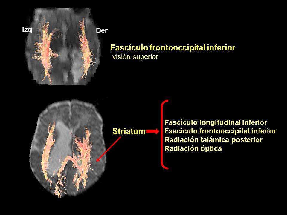Striatum Fascículo frontooccipital inferior visión superior Der Izq Fascículo longitudinal inferior Fascículo frontooccipital inferior Radiación talám