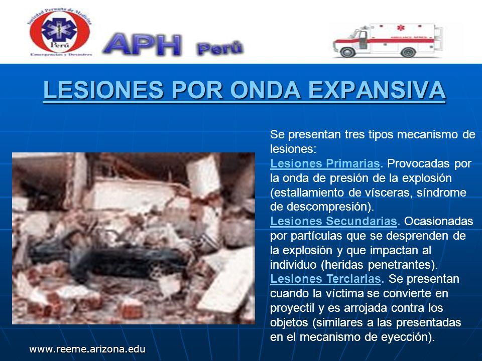 www.reeme.arizona.edu LESIONES POR ONDA EXPANSIVA Se presentan tres tipos mecanismo de lesiones: Lesiones Primarias. Provocadas por la onda de presión