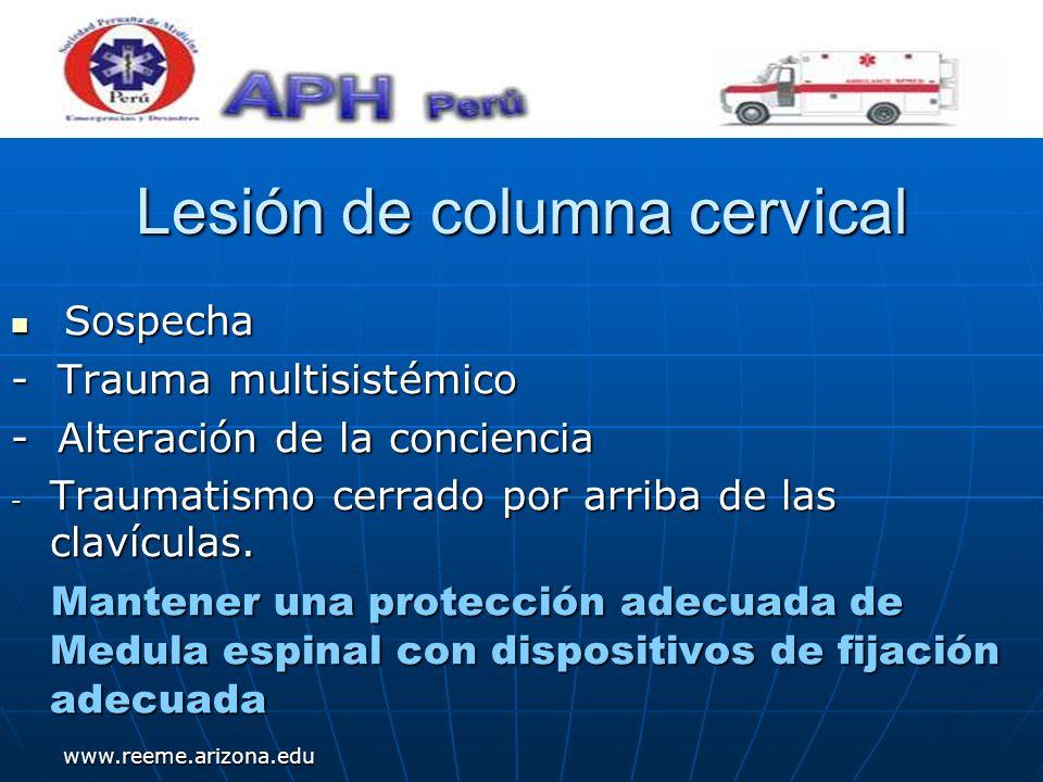 www.reeme.arizona.edu Lesión de columna cervical Sospecha Sospecha - Trauma multisistémico - Alteración de la conciencia - Traumatismo cerrado por arr