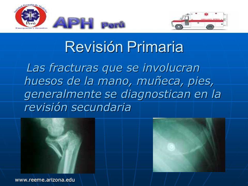 www.reeme.arizona.edu Revisión Primaria Las fracturas que se involucran huesos de la mano, muñeca, pies, generalmente se diagnostican en la revisión s