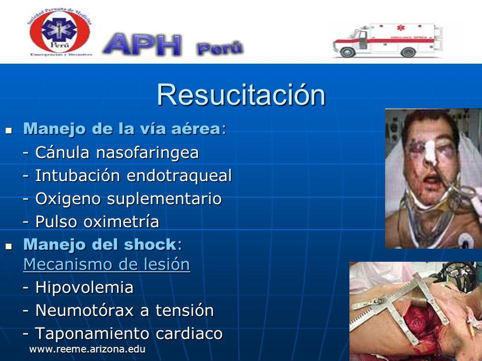 www.reeme.arizona.edu Resucitación Manejo de la vía aérea : Manejo de la vía aérea : - Cánula nasofaringea - Cánula nasofaringea - Intubación endotraq