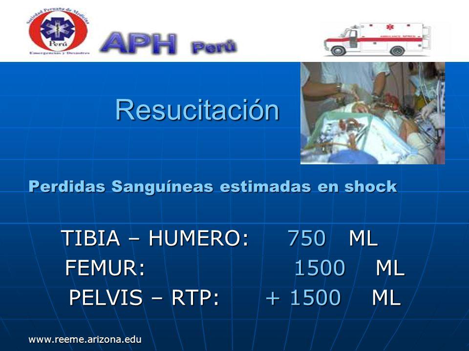 www.reeme.arizona.edu Resucitación Perdidas Sanguíneas estimadas en shock TIBIA – HUMERO: 750 ML TIBIA – HUMERO: 750 ML FEMUR: 1500 ML PELVIS – RTP: +