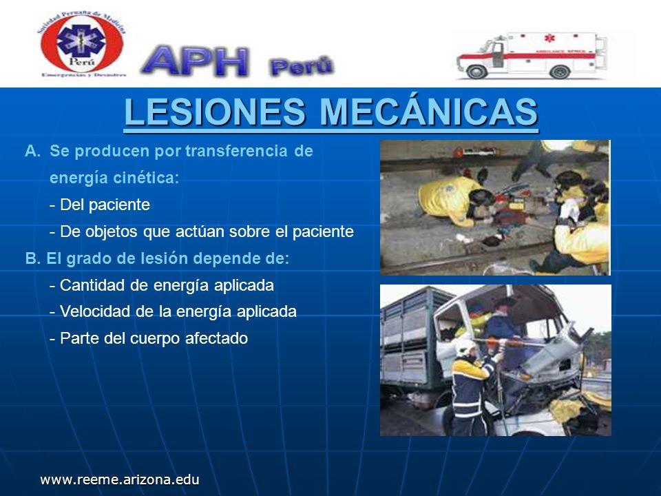 www.reeme.arizona.edu LESIONES MECÁNICAS A.Se producen por transferencia de energía cinética: - Del paciente - De objetos que actúan sobre el paciente