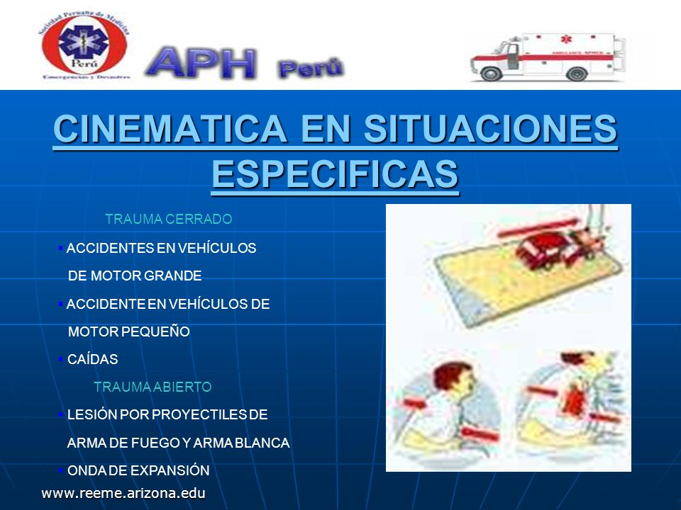 www.reeme.arizona.edu ACCIDENTES EN VEHÍCULOS DE MOTOR GRANDE DESACELERACIÓN POR COLISIÓN FRONTAL.