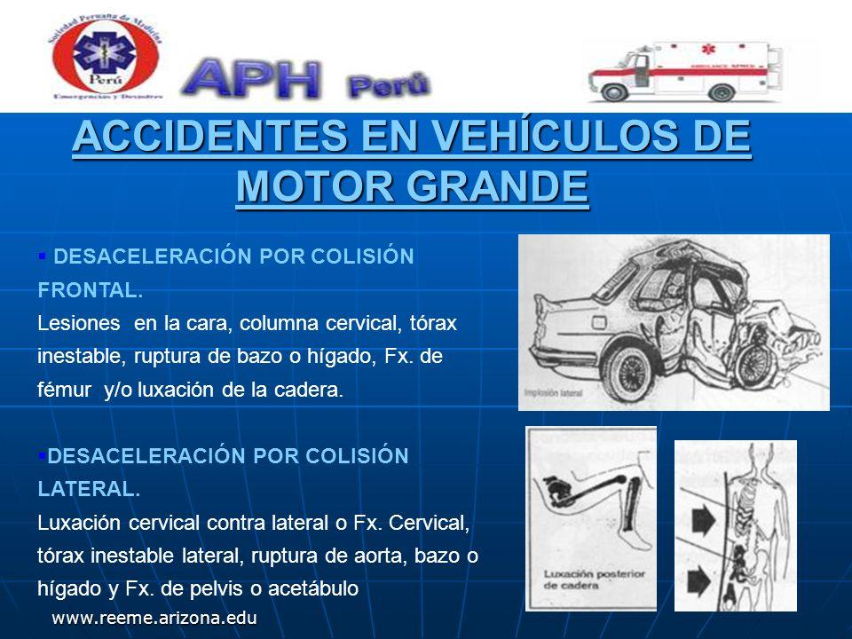 www.reeme.arizona.edu ACCIDENTES EN VEHÍCULOS DE MOTOR GRANDE DESACELERACIÓN POR COLISIÓN FRONTAL. Lesiones en la cara, columna cervical, tórax inesta