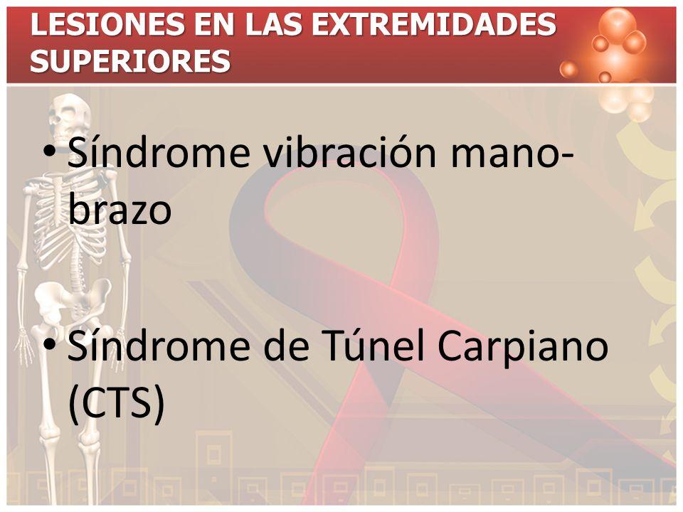 Síndrome vibración mano- brazo Síndrome de Túnel Carpiano (CTS)