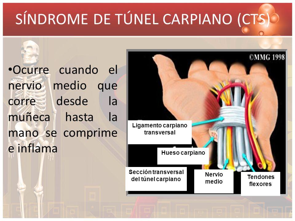 SÍNDROME DE TÚNEL CARPIANO (CTS) Ocurre cuando el nervio medio que corre desde la muñeca hasta la mano se comprime e inflama Ligamento carpiano transv
