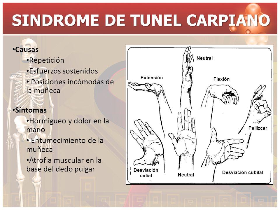 SINDROME DE TUNEL CARPIANO Causas Repetición Esfuerzos sostenidos Posiciones incómodas de la muñeca Síntomas Hormigueo y dolor en la mano Entumecimien