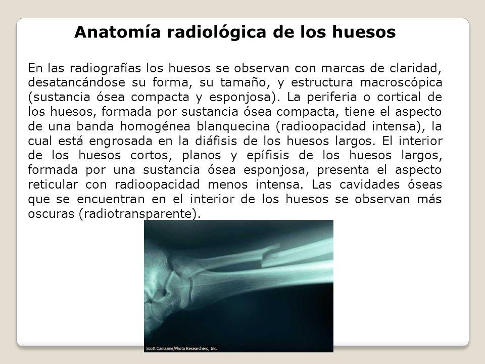 Anatomía radiológica de los huesos En las radiografías los huesos se observan con marcas de claridad, desatancándose su forma, su tamaño, y estructura