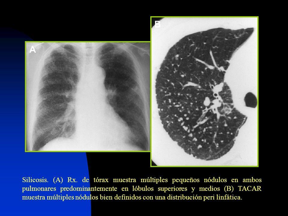 Silicosis. (A) Rx. de tórax muestra múltiples pequeños nódulos en ambos pulmonares predominantemente en lóbulos superiores y medios (B) TACAR muestra