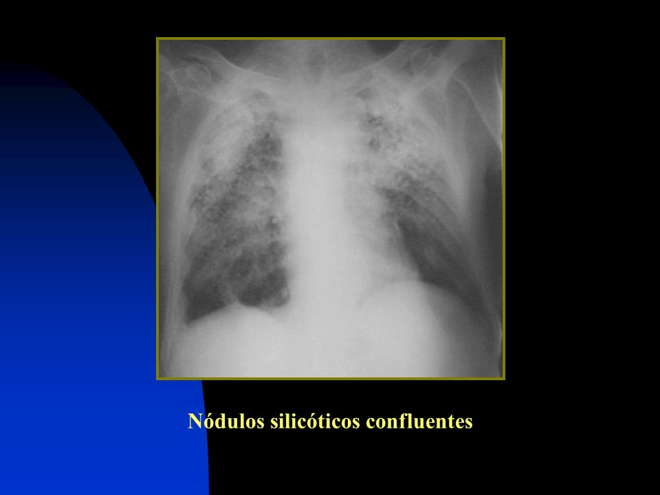 Nódulos silicóticos confluentes
