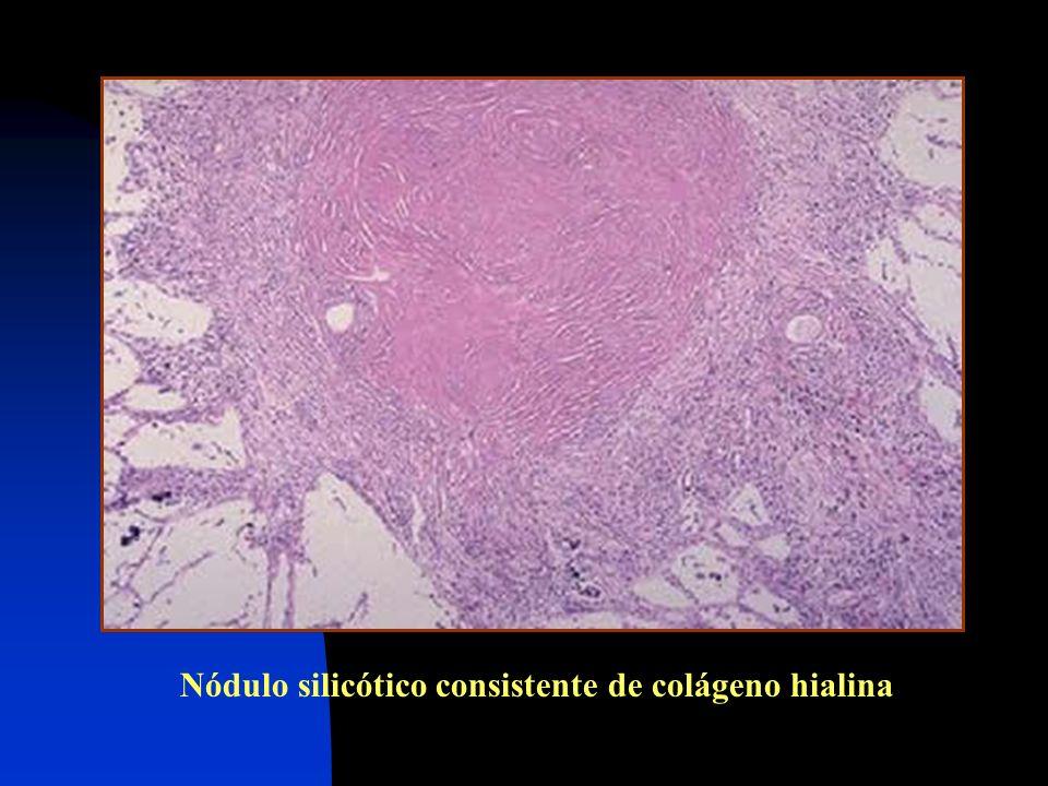 Nódulo silicótico consistente de colágeno hialina