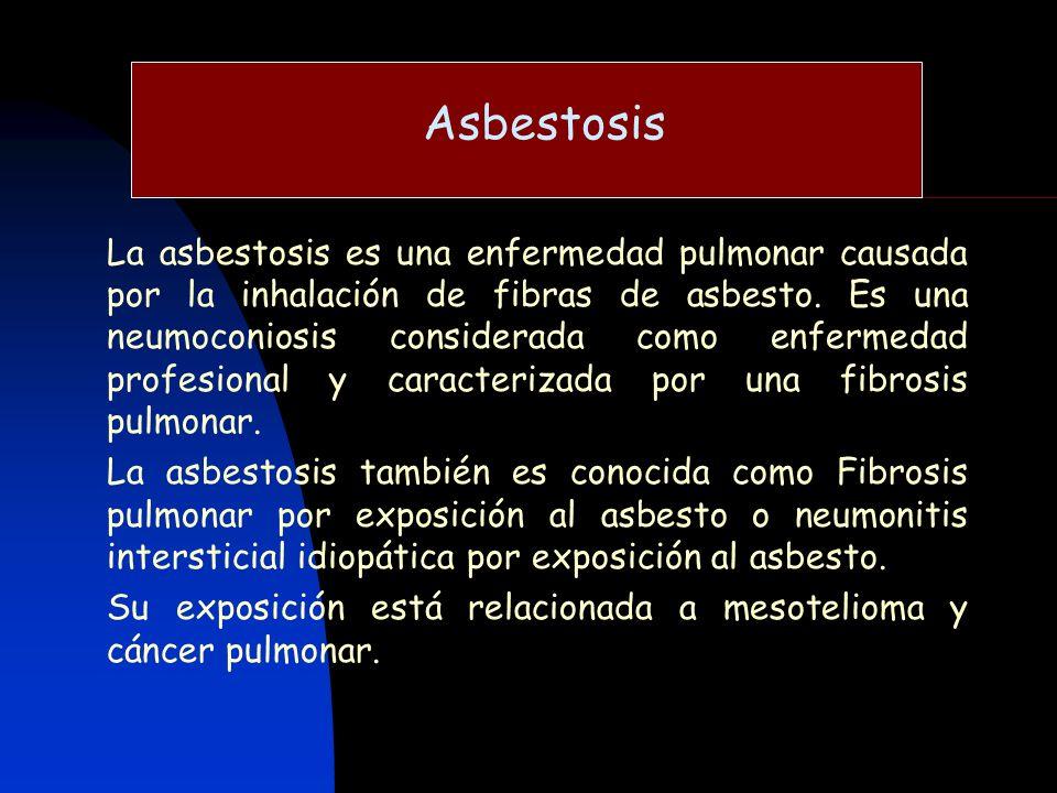 Asbestosis La asbestosis es una enfermedad pulmonar causada por la inhalación de fibras de asbesto. Es una neumoconiosis considerada como enfermedad p