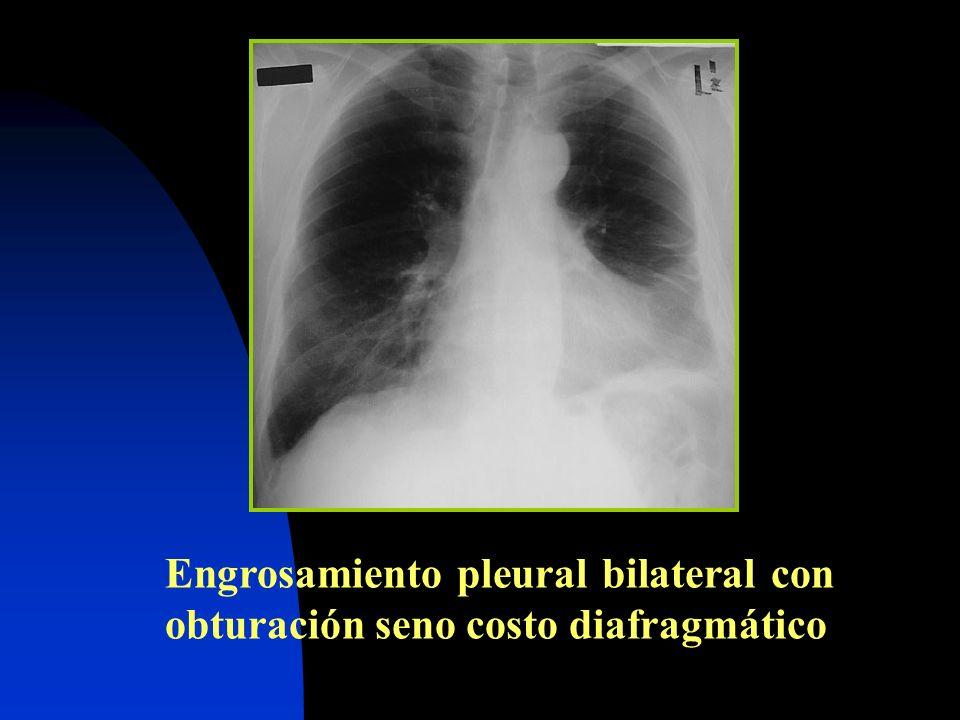 Engrosamiento pleural bilateral con obturación seno costo diafragmático