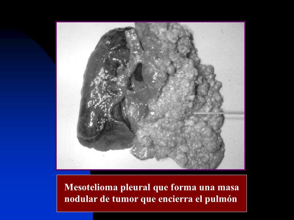 Mesotelioma pleural que forma una masa nodular de tumor que encierra el pulmón