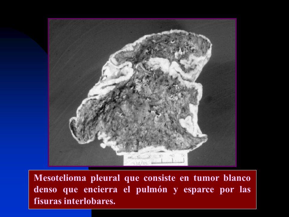 Mesotelioma pleural que consiste en tumor blanco denso que encierra el pulmón y esparce por las fisuras interlobares.