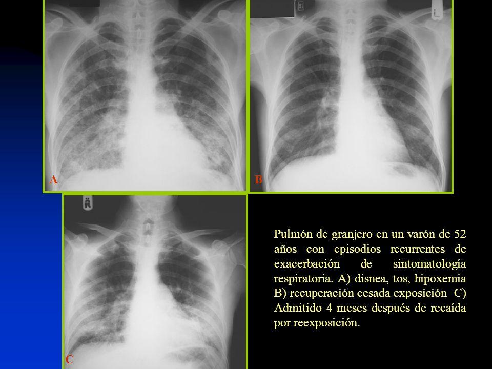C BA Pulmón de granjero en un varón de 52 años con episodios recurrentes de exacerbación de sintomatología respiratoria. A) disnea, tos, hipoxemia B)