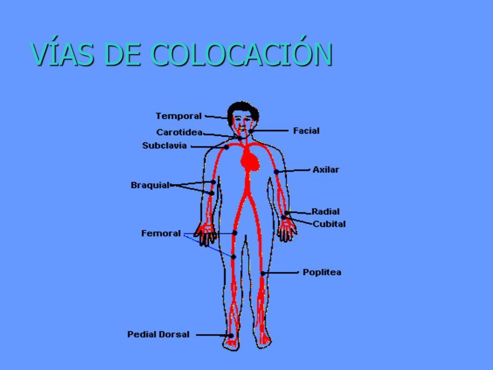 VÍAS DE COLOCACIÓN