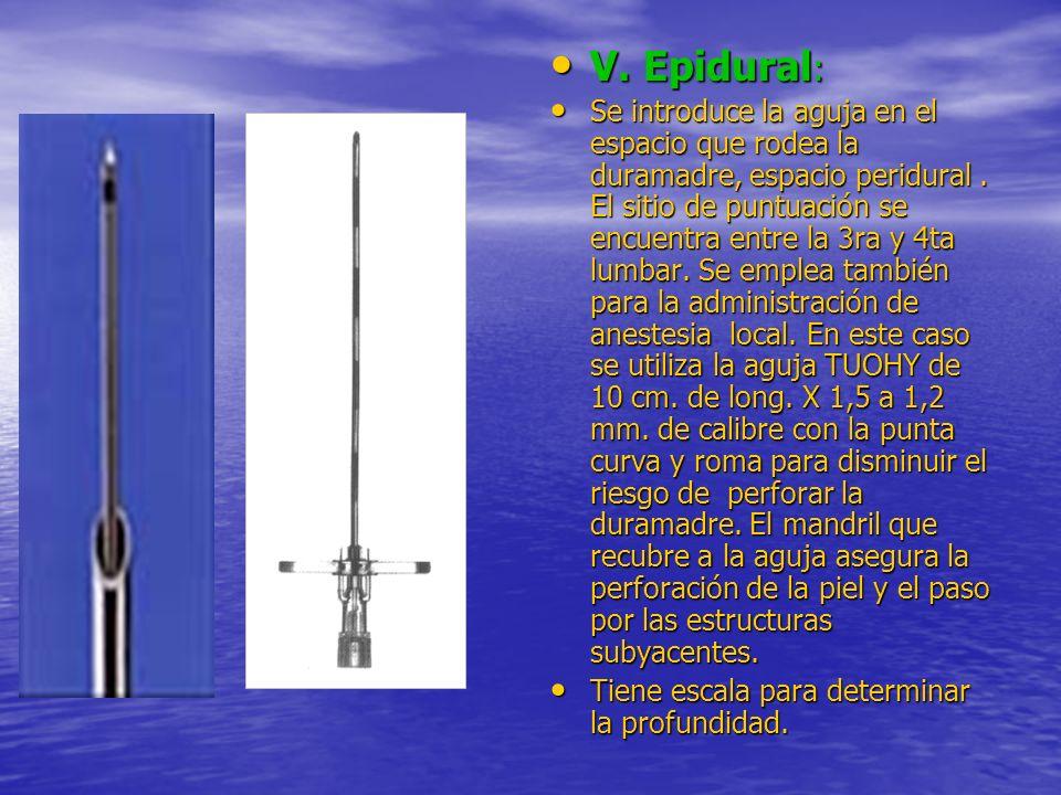 V. Epidural : V. Epidural : Se introduce la aguja en el espacio que rodea la duramadre, espacio peridural. El sitio de puntuación se encuentra entre l