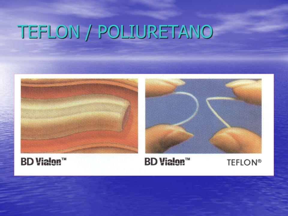 TEFLON / POLIURETANO