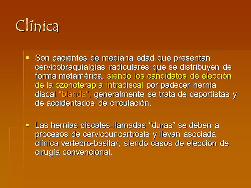 Clínica Son pacientes de mediana edad que presentan cervicobraquialgias radiculares que se distribuyen de forma metamérica, siendo los candidatos de elección de la ozonoterapia intradiscal por padecer hernia discal blanda, generalmente se trata de deportistas y de accidentados de circulación.