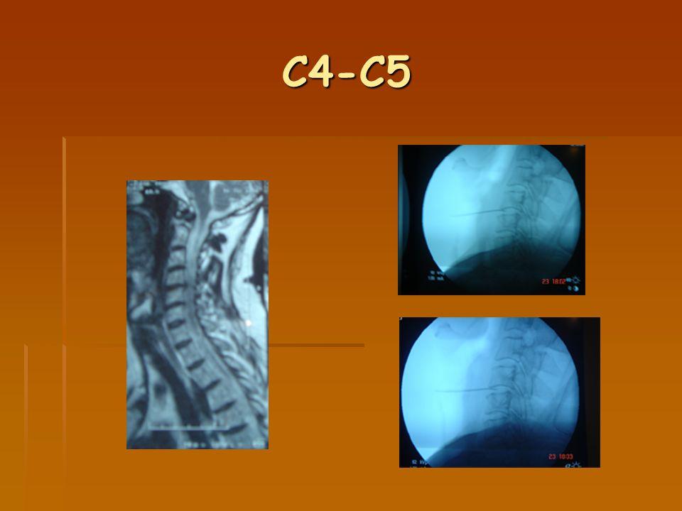 C4-C5