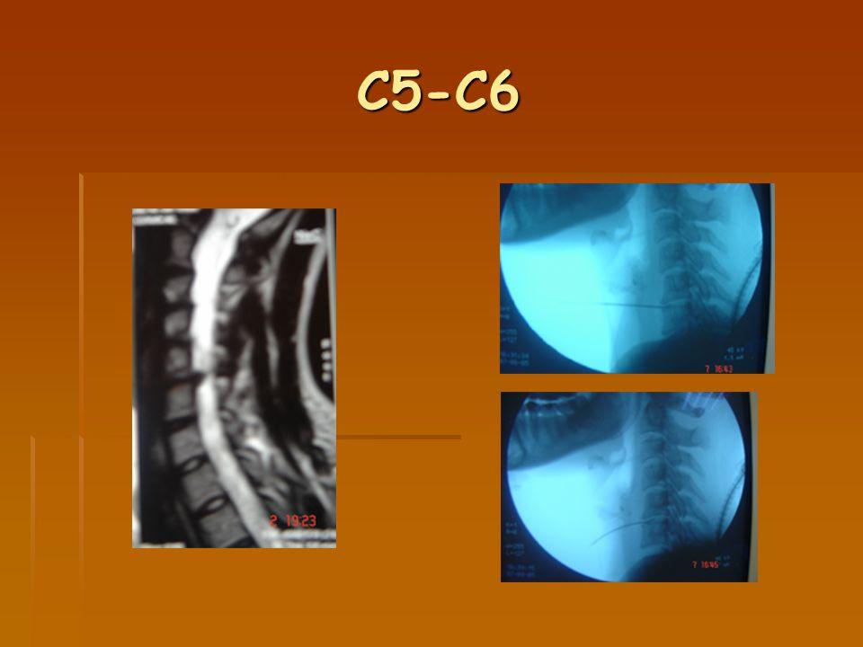 C5-C6