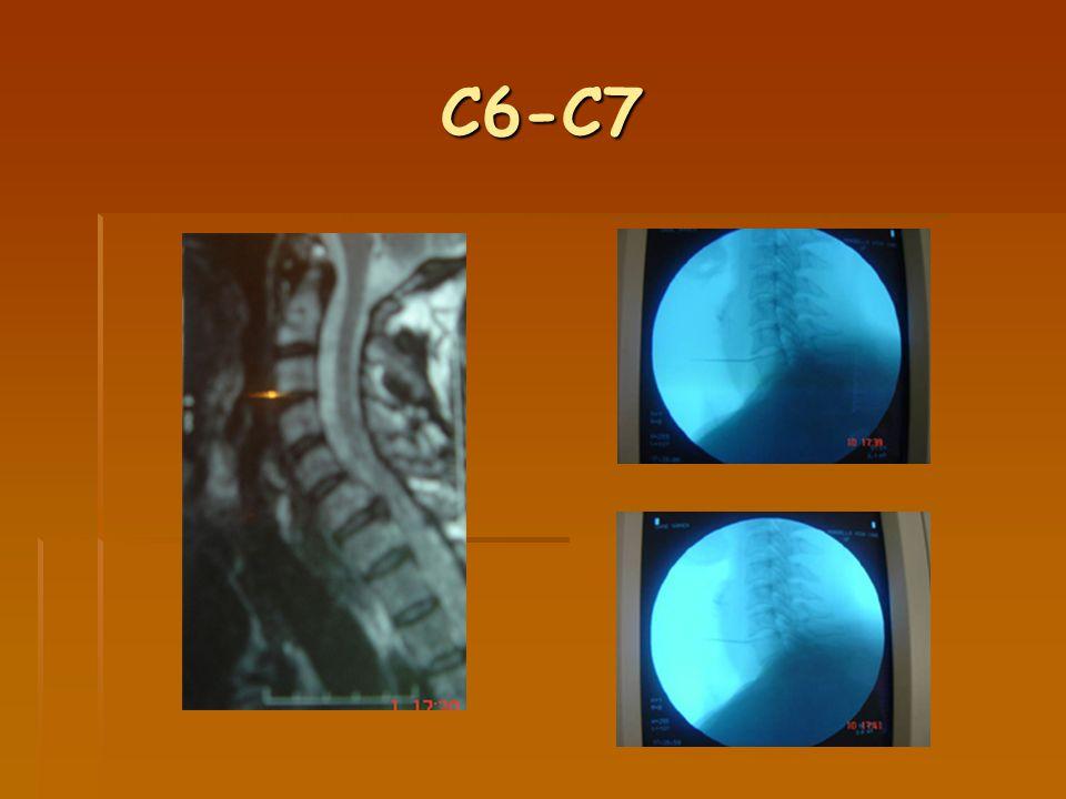 C6-C7