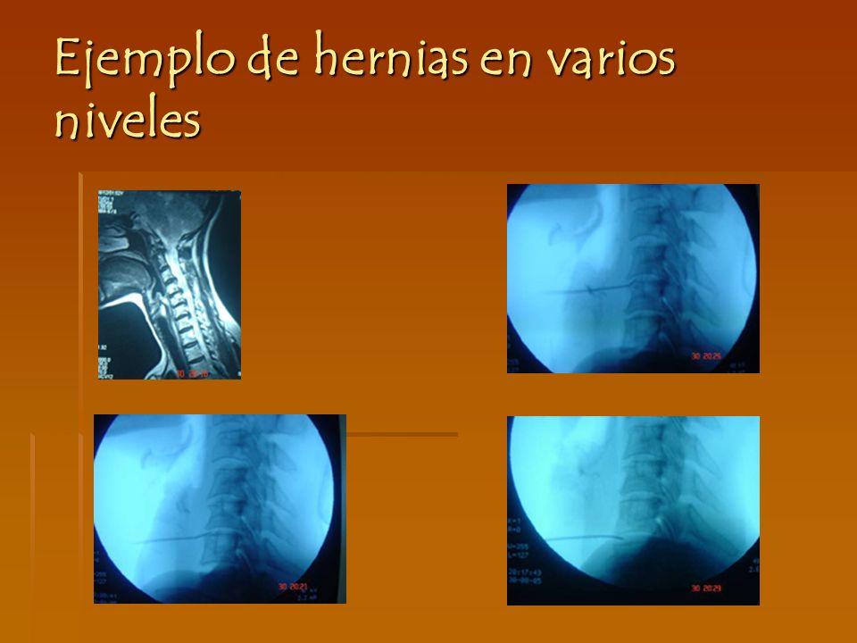 Ejemplo de hernias en varios niveles