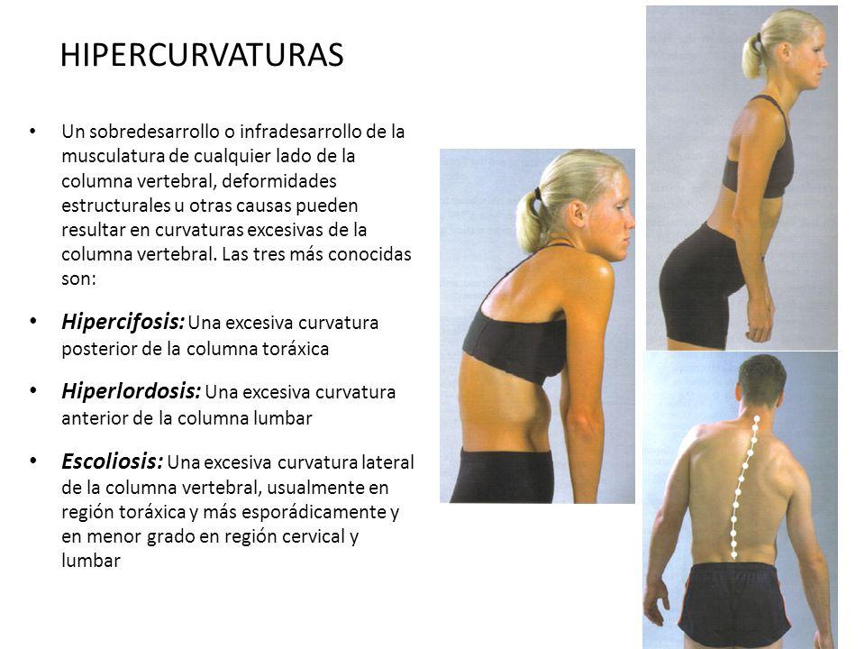 HIPERCURVATURAS Un sobredesarrollo o infradesarrollo de la musculatura de cualquier lado de la columna vertebral, deformidades estructurales u otras c