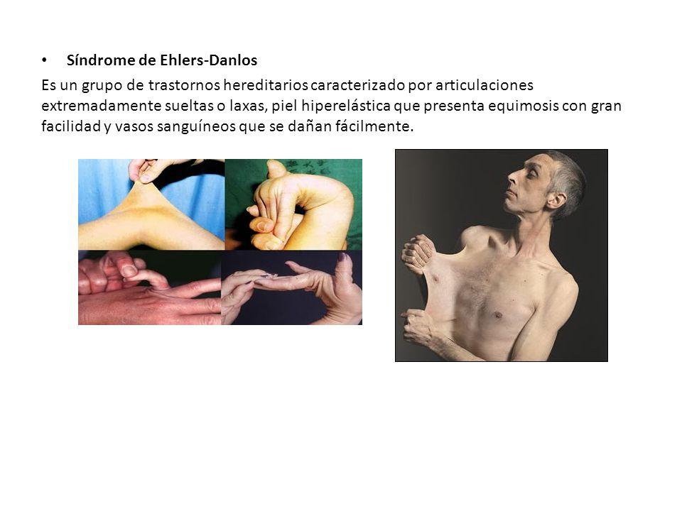 Síndrome de Ehlers-Danlos Es un grupo de trastornos hereditarios caracterizado por articulaciones extremadamente sueltas o laxas, piel hiperelástica que presenta equimosis con gran facilidad y vasos sanguíneos que se dañan fácilmente.
