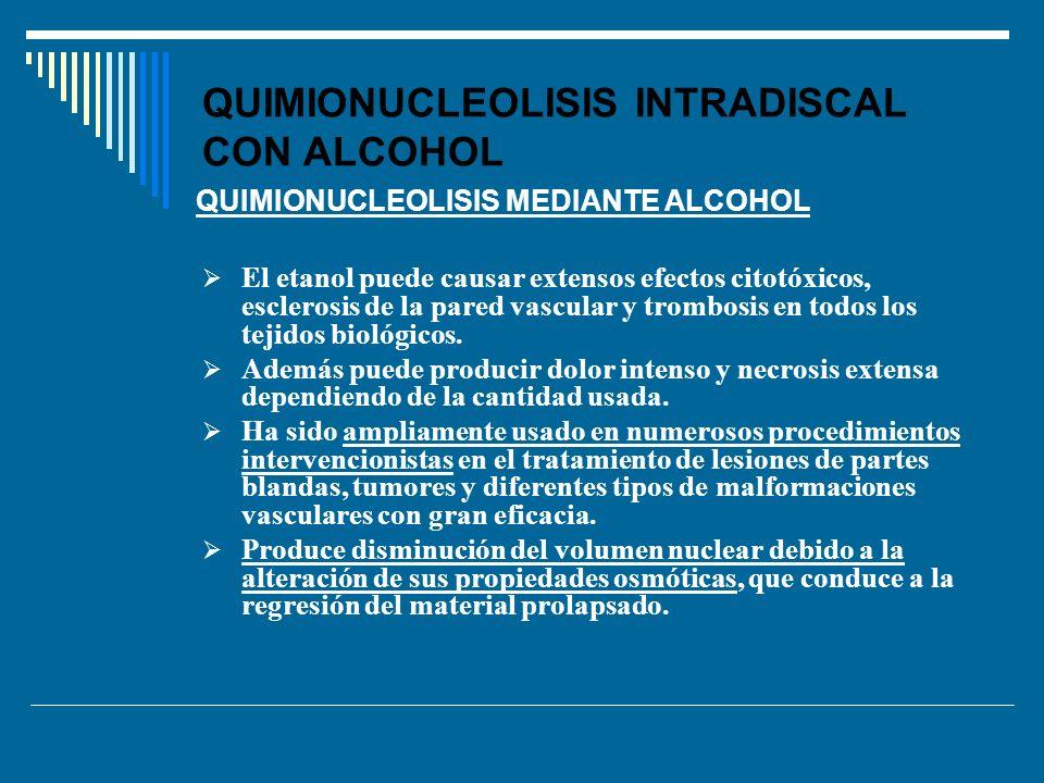 QUIMIONUCLEOLISIS INTRADISCAL CON ALCOHOL El etanol puede causar extensos efectos citotóxicos, esclerosis de la pared vascular y trombosis en todos lo