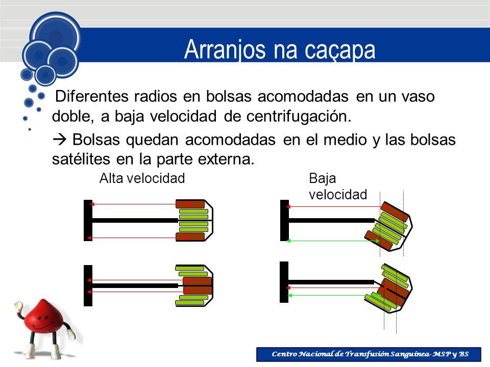 Centro Nacional de Transfusión Sanguínea- MSP y BS Arranjos na caçapa Diferentes radios en bolsas acomodadas en un vaso doble, a baja velocidad de cen