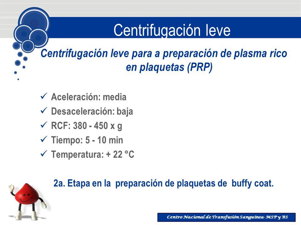 Centro Nacional de Transfusión Sanguínea- MSP y BS Centrifugación leve Centrifugación leve para a preparación de plasma rico en plaquetas (PRP) Aceler