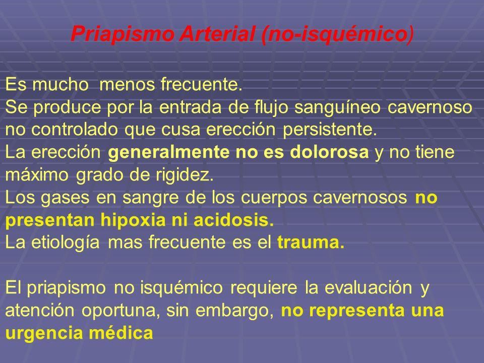 Priapismo Arterial (no-isquémico) Es mucho menos frecuente. Se produce por la entrada de flujo sanguíneo cavernoso no controlado que cusa erección per