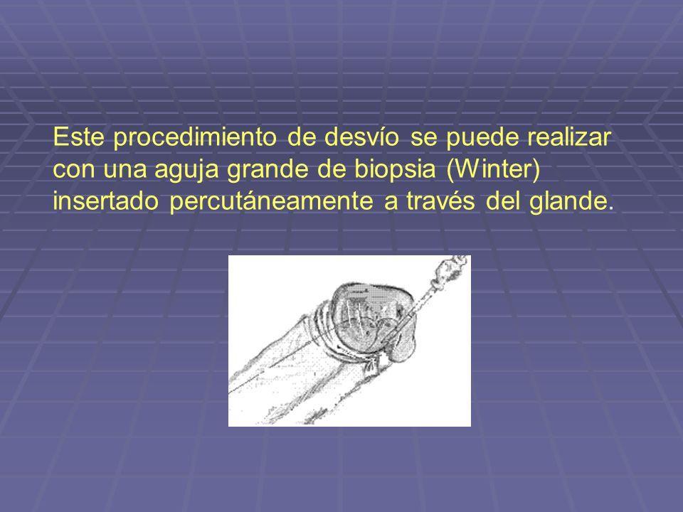 Este procedimiento de desvío se puede realizar con una aguja grande de biopsia (Winter) insertado percutáneamente a través del glande.