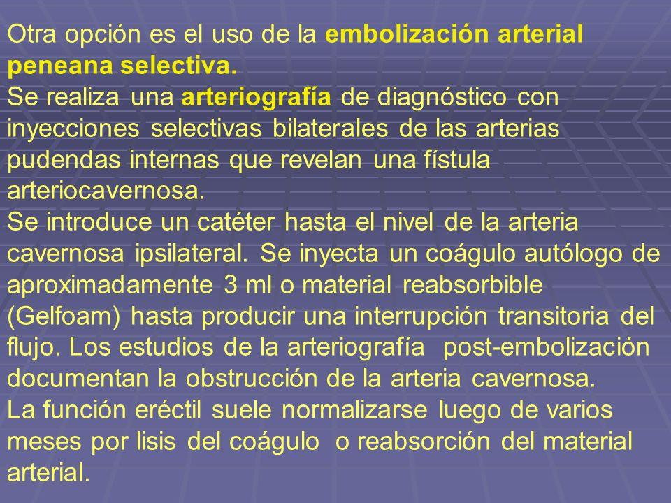 Otra opción es el uso de la embolización arterial peneana selectiva. Se realiza una arteriografía de diagnóstico con inyecciones selectivas bilaterale