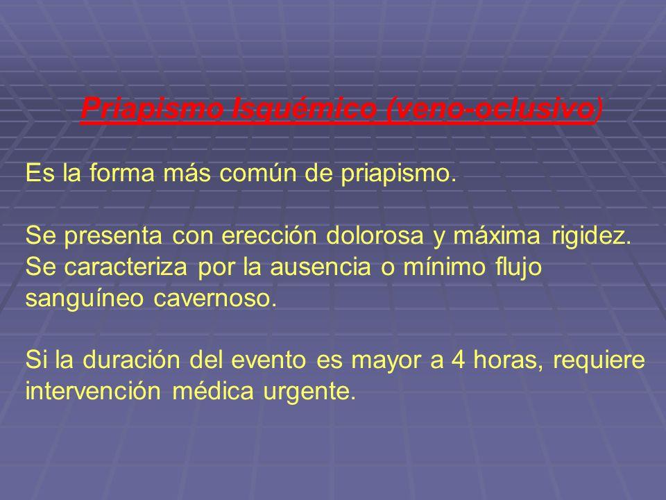 Priapismo Isquémico (veno-oclusivo) Es la forma más común de priapismo.