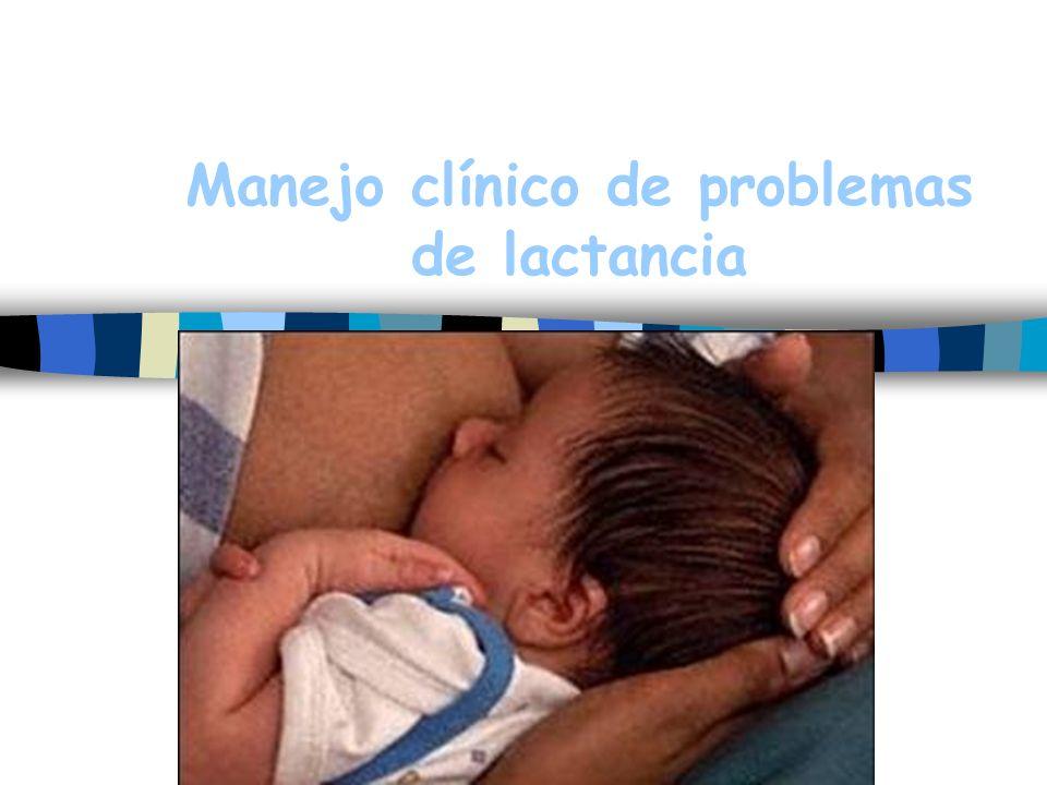 Manejo clínico de problemas de lactancia