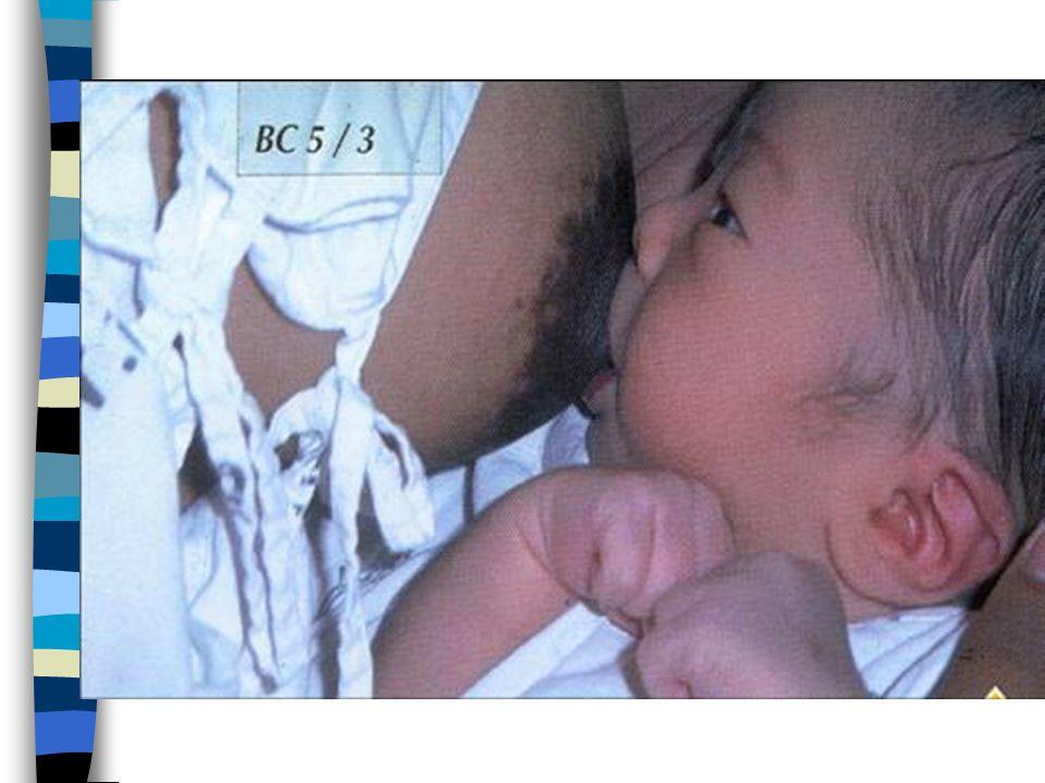 Reflejo Eyectolácteo Exagerado - Cólicos n Rechazo al amamantamiento por parte del niño, por una gran descarga de leche que lo atora y luego presenta cólicos.