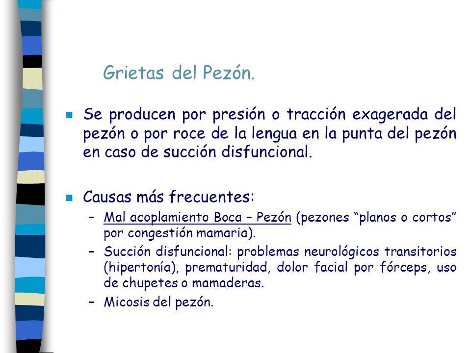Grietas del Pezón. n Se producen por presión o tracción exagerada del pezón o por roce de la lengua en la punta del pezón en caso de succión disfuncio
