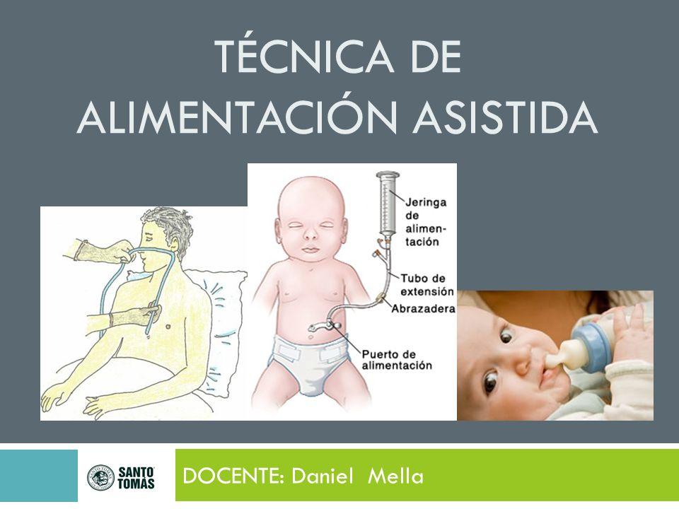 TÉCNICA DE ALIMENTACIÓN ASISTIDA DOCENTE: Daniel Mella