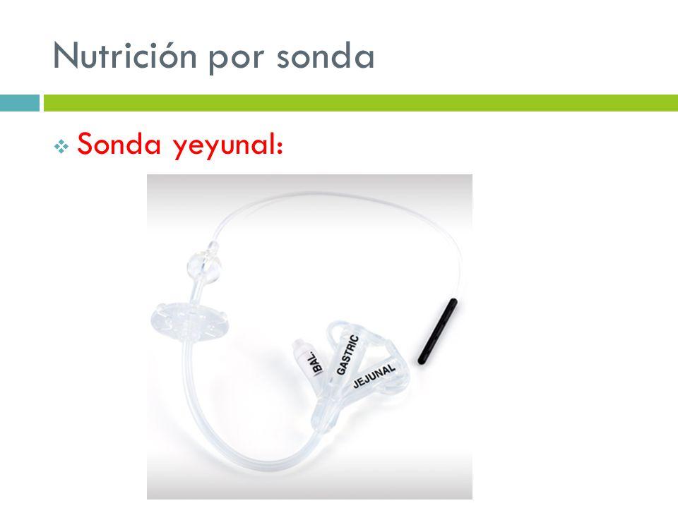 Nutrición por sonda Sonda yeyunal:
