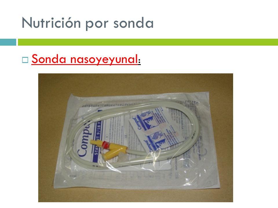 Nutrición por sonda Sonda nasoyeyunal :