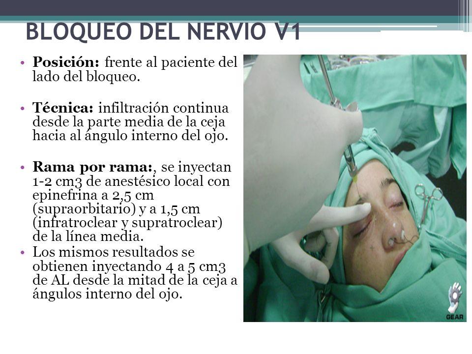 BLOQUEO DEL NERVIO V1 Posición: frente al paciente del lado del bloqueo.
