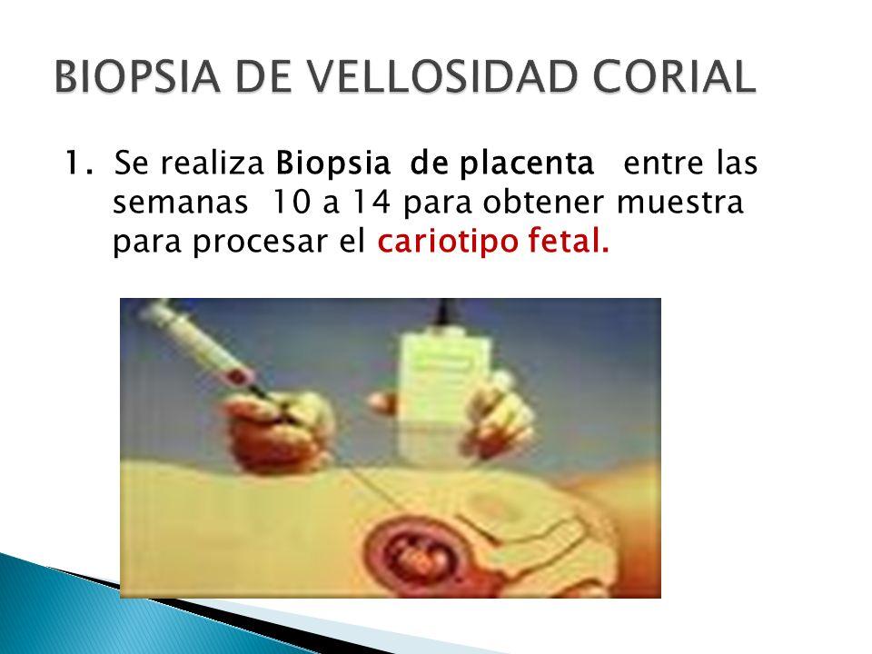 1. Se realiza Biopsia de placenta entre las semanas 10 a 14 para obtener muestra para procesar el cariotipo fetal.