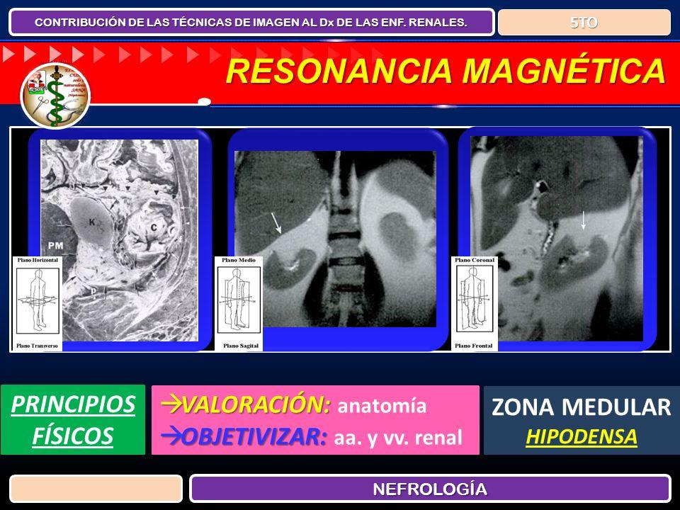 CONTRIBUCIÓN DE LAS TÉCNICAS DE IMAGEN AL Dx DE LAS ENF. RENALES. NEFROLOGÍANEFROLOGÍA 5TO5TO RESONANCIA MAGNÉTICA PRINCIPIOS FÍSICOS VALORACIÓN: VALO