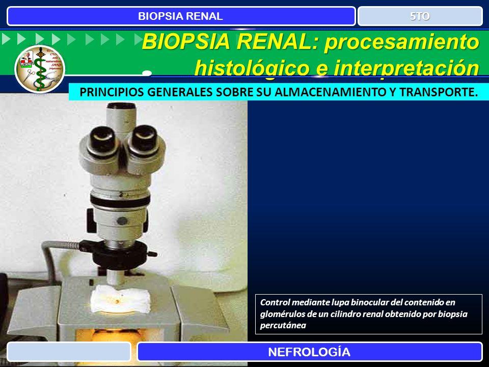 BIOPSIA RENAL NEFROLOGÍA 5TO BIOPSIA RENAL: procesamiento histológico e interpretación PRINCIPIOS GENERALES SOBRE SU ALMACENAMIENTO Y TRANSPORTE. Cont