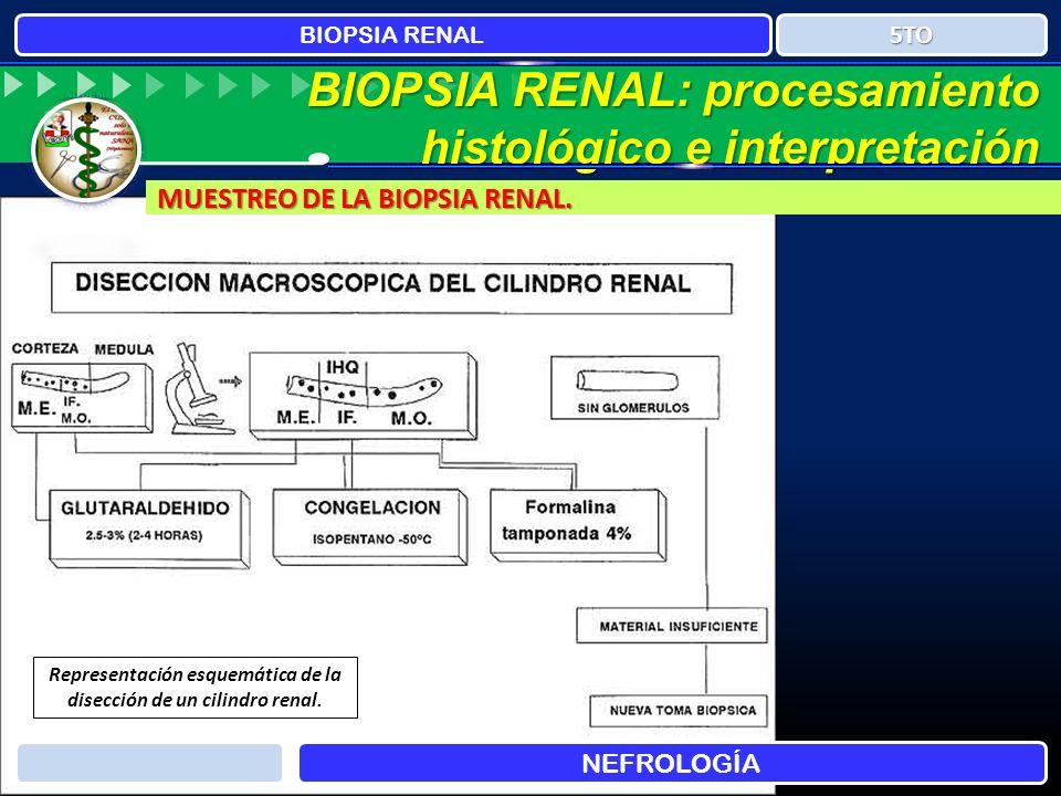 BIOPSIA RENAL: procesamiento histológico e interpretación MUESTREO DE LA BIOPSIA RENAL. BIOPSIA RENAL NEFROLOGÍA 5TO Representación esquemática de la