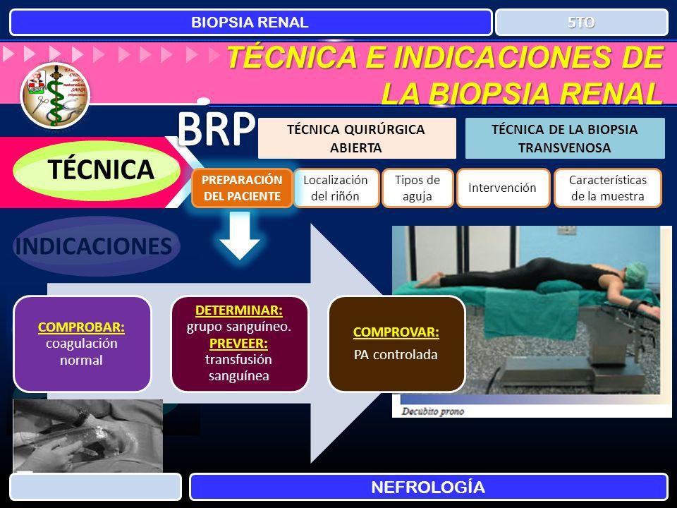 TÉCNICA E INDICACIONES DE LA BIOPSIA RENAL BIOPSIA RENAL NEFROLOGÍA 5TO TÉCNICA TÉCNICA QUIRÚRGICA ABIERTA TÉCNICA DE LA BIOPSIA TRANSVENOSA INDICACIO